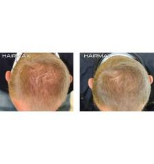 HairMax - napredni laserski češalj 7