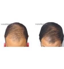HairMax - profesionalni laserski češalj 12