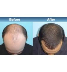 Rogaine (Regaine) za muškarce ® pjena 5% minoxidil - 3 mjeseca